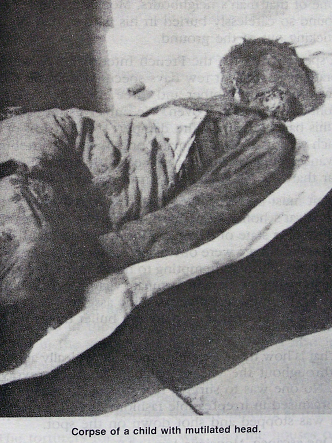 Corpse of child with mutilated head